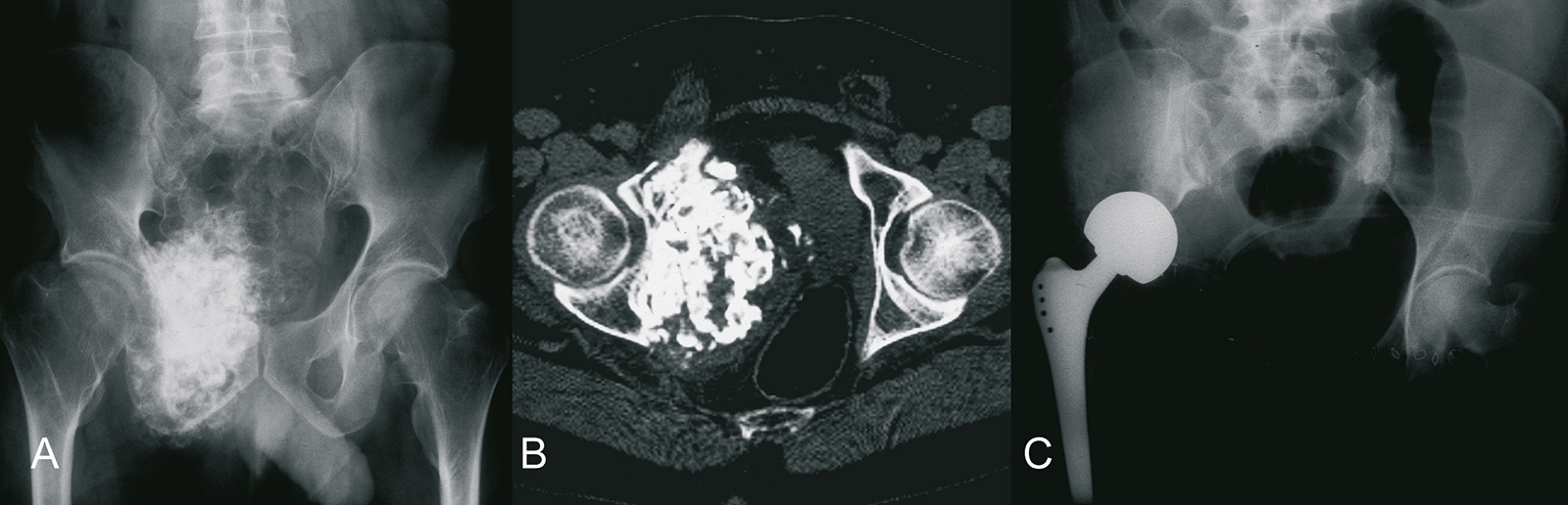 Abb. 8-64: G2 Chondrosarkom des Schambeins: natives Röntgenbild (A) und CT (B), nach P2, 3 Beckenteilresektion und Hüftverschiebeplastik (Eigentum des Instituts für Klinische Radiologie der Universität Münster)