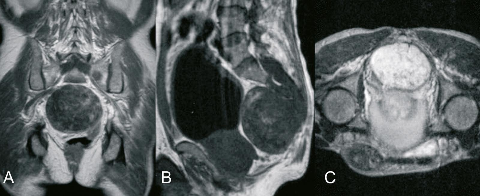 Abb. 8-65: Chordom des Os sacrum: MRT-Bildgebung (A-C) (Eigentum des Instituts für Klinische Radiologie der Universität Münster)