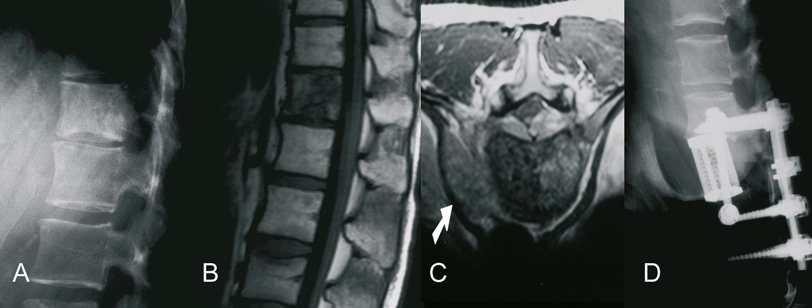 Abb. 8-69: Ewingsarkom der Wirbelsäule, auf einen Wirbelkörper beschränkter Befund im nativen Röntgenbild (A) und in der MRT-Bildgebung (B,C), nach Vertebrektomie und Cageinterposition mit dorsaler Stabilisierung (D) (Eigentum des Instituts für Klinische