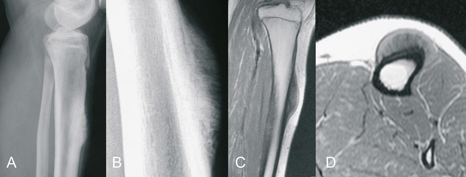 Abb. 8-71: Periostales Osteosarkom: natives Röntgenbild (A,B) und MRT-Bildgebung (C,D) (Eigentum des Instituts für Klinische Radiologie der Universität Münster)
