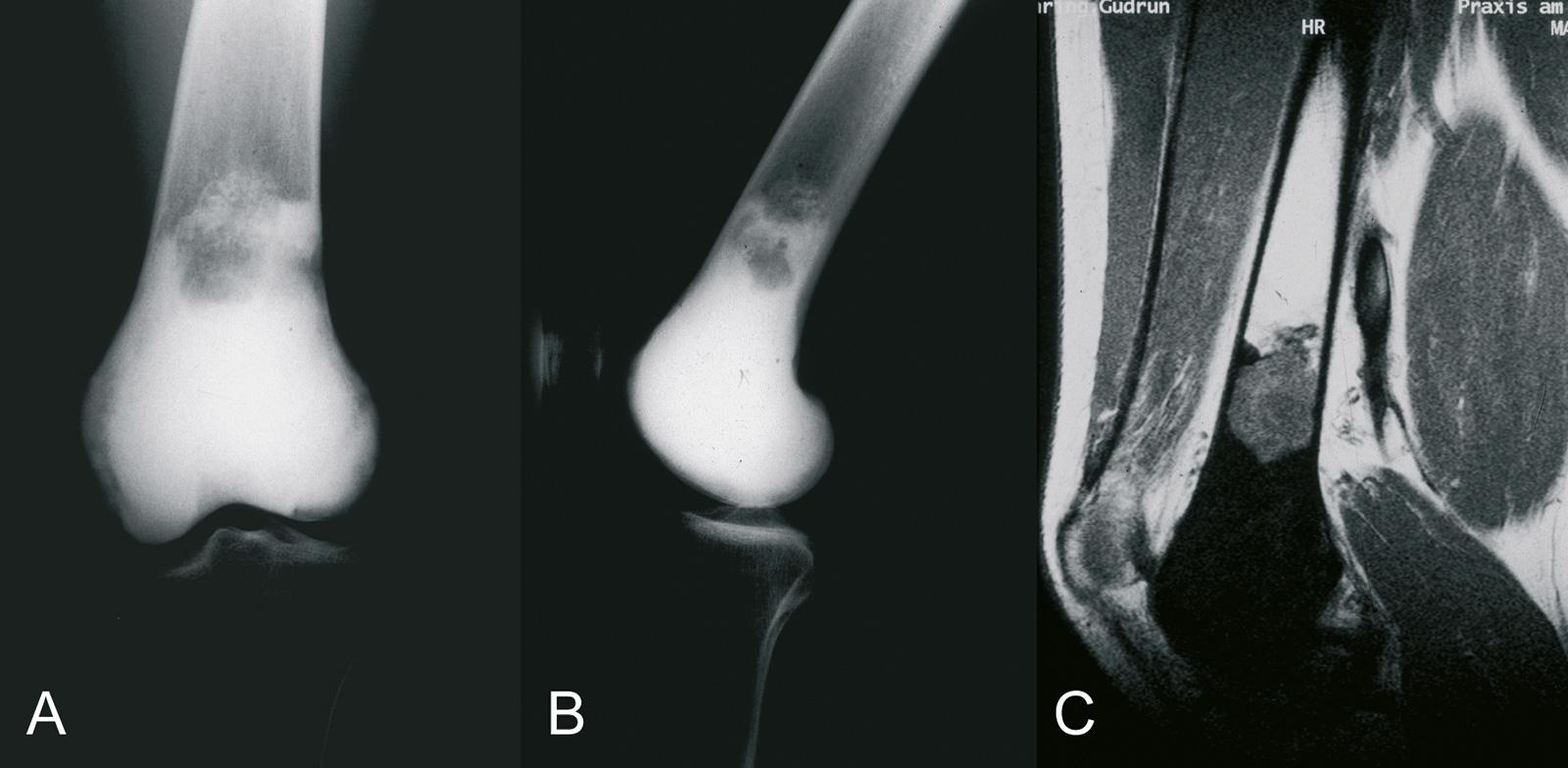 Abb. 8-73: Sklerosierendes Osteosarkom: natives Röntgenbild (A,B) und MRT-Bildgebung (C) (Eigentum des Instituts für Klinische Radiologie der Universität Münster)