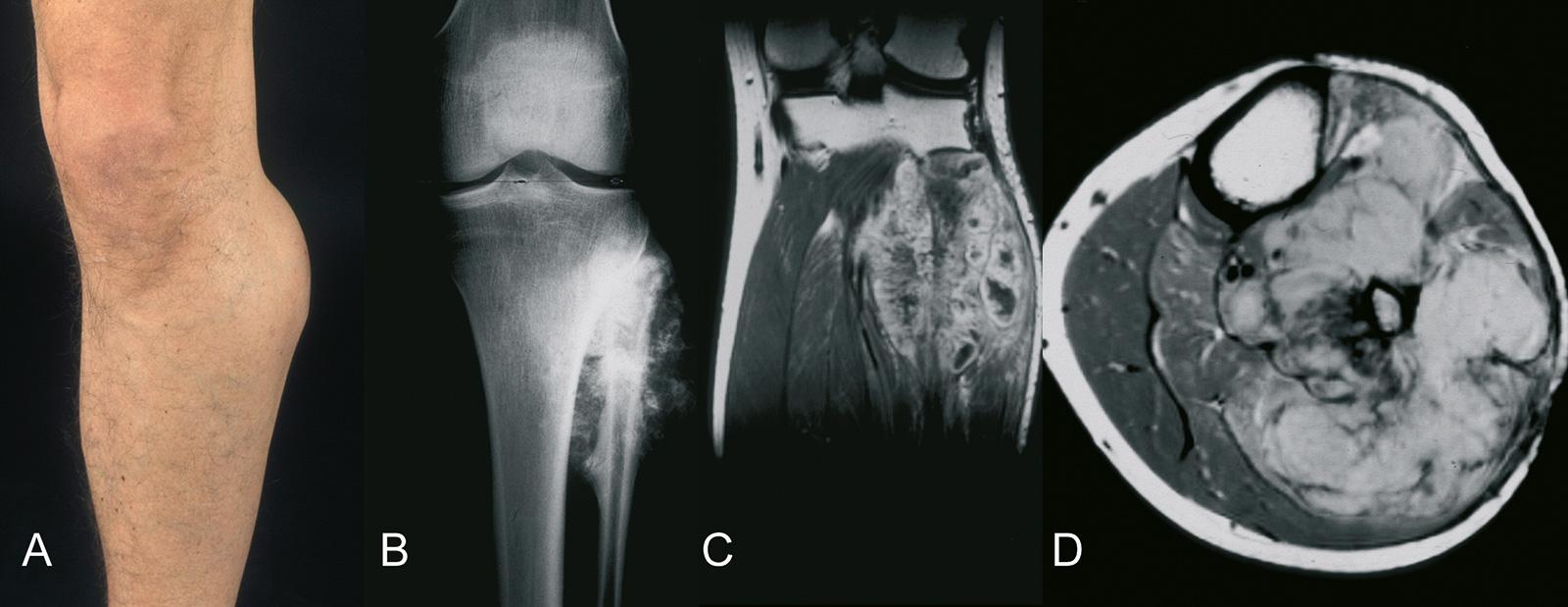 Abb. 8-74: Osteosarkom der proximalen Fibula: klinisches Bild (A), natives Röntgenbild (B), MRT-Bildgebung (C,D) (Eigentum des Instituts für Klinische Radiologie der Universität Münster)