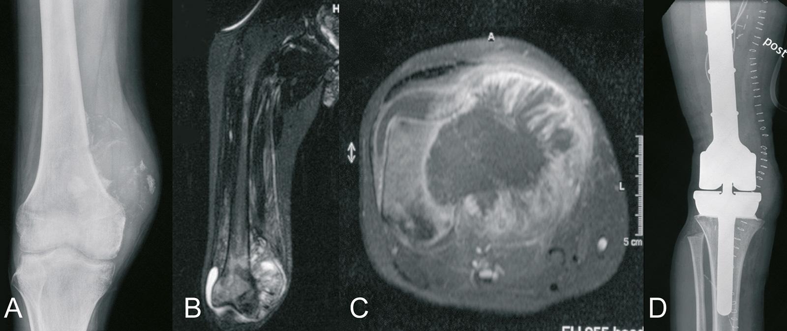 Abb. 8-75: Osteosarkom des distalen Femurs mit intraartikulärer Ausdehnung: natives Röntgenbild (A), MRT-Bildgebung (B,C), nach extraartikulärer Tumorresektion und Implantation einer Tumorprothese (MUTARS, Implantcast)(D) (Eigentum des Instituts für Klini