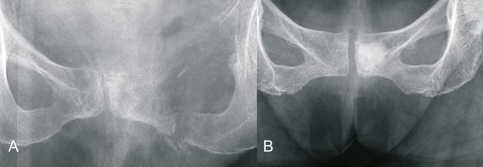 Abb. 8-78: Schambeinmetastase: osteolytisch (A), osteoblastisch (B) (Eigentum des Instituts für Klinische Radiologie der Universität Münster)