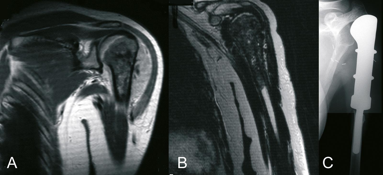 Abb. 8-8: Osteosarkom des proximalen Humerus (A-B). Nach Resektion und Defektrekonstruktion mit einer Tumorprothese (C)