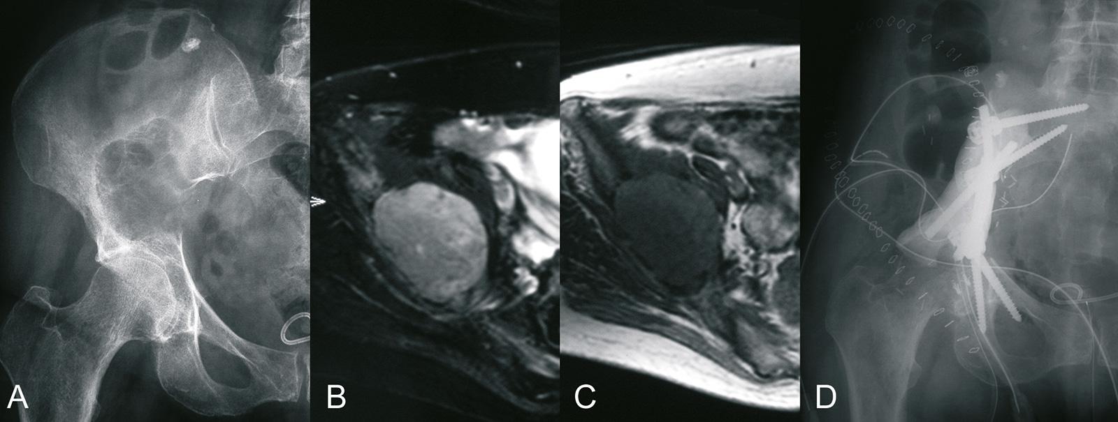 Abb. 8-81: Differentialdiagnose: 63-jährige Patientin mit einem primären Knochensarkom: natives Röntgenbild (A), MRT-Bildgebung (B,C), nach P1 Beckenteilresektion und Rekonstruktion mit Pedikelschrauben und Stab (D) (Eigentum des Instituts für Klinische R