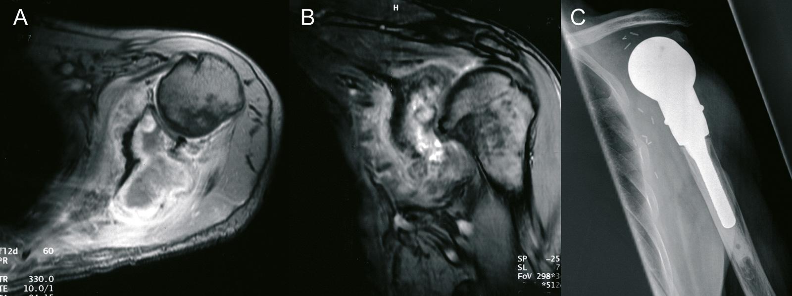 Abb. 8-9: Tikhoff Linberg Operation (C) nach exraartikulärer Resektion eines Osteosarkoms (A-B)