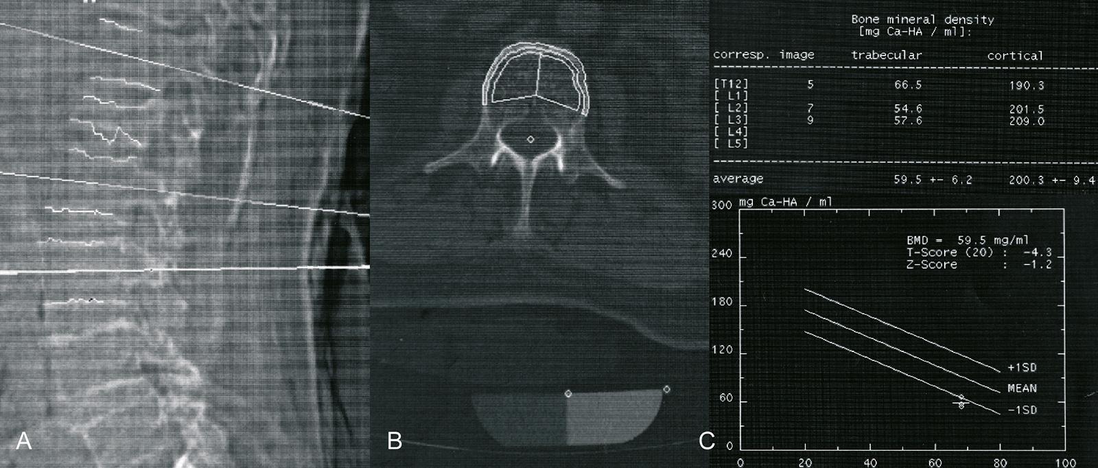Abb. 9-3: Q-CT: Scanogramm (A), Bestimmung der kortikalen und spongiösen Knochendichte (B), Knochendichte und Umrechnung in T- und Z-Score (C) (Eigentum des Instituts für Klinische Radiologie der Universität Münster)